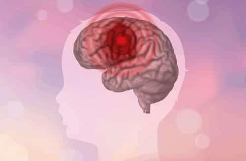 Очаг повреждения мозга ребенка