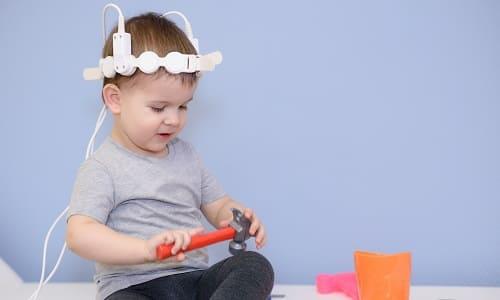 Ребенок с устройством транскраниальной магнитной стимуляции