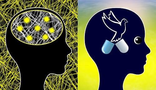 Состояние мозга до и после лечения эпилепсии