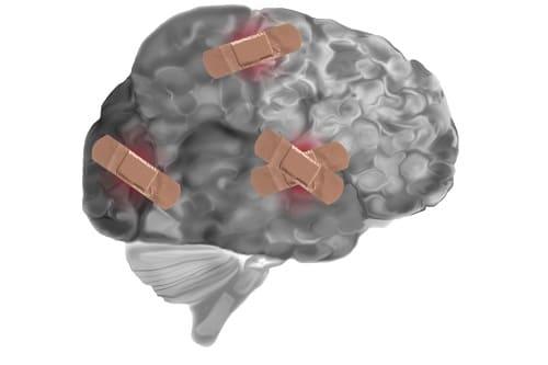 Заклеенные лейкопластырем участки мозга