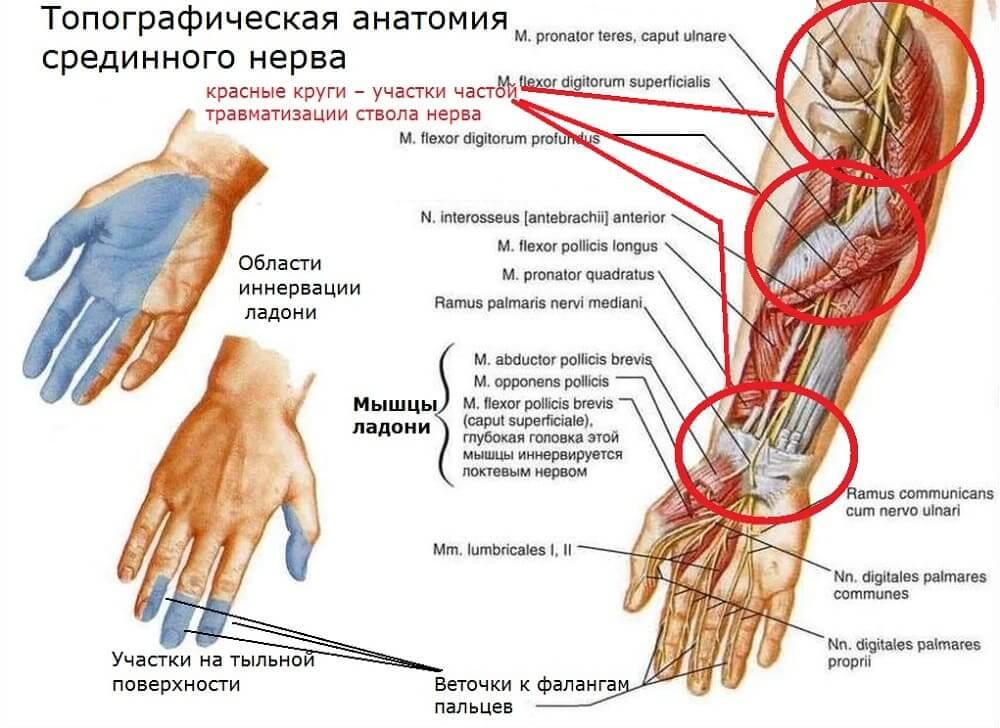 Анатомия и места развития компрессионной нейропатии срединного нерва