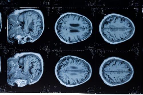 Диффузная энцефалопатия на МРТ