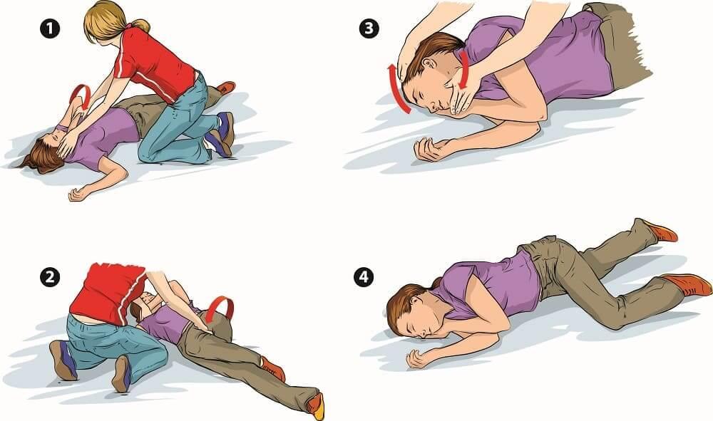 Этапы помощи при приступе эпилепсии