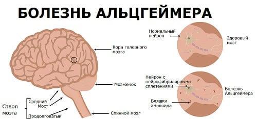 Механизм болезни Альцгеймера