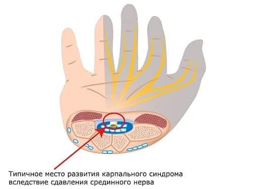 Место сдавления срединного нерва и области его иннервации