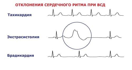 Патология кардиограммы при ВСД