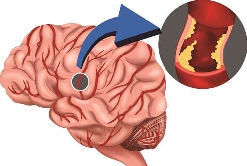 Поражение сосудов мозга
