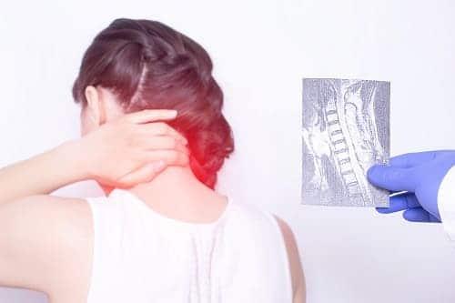 Шейный остеохондроз как причина шума в ушах