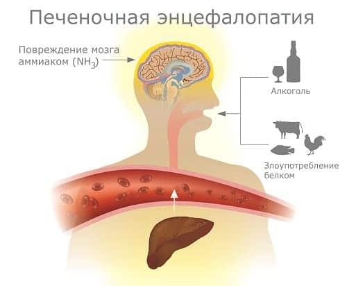 Схема энцефалопатии при поражении печени