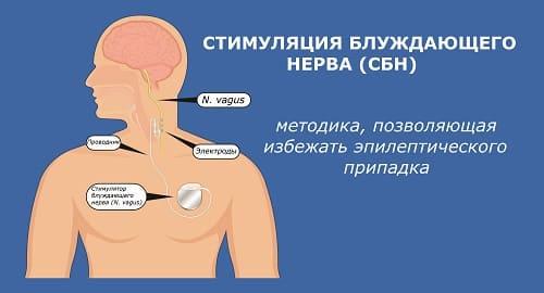 Схема стимулятора блуждающего нерва