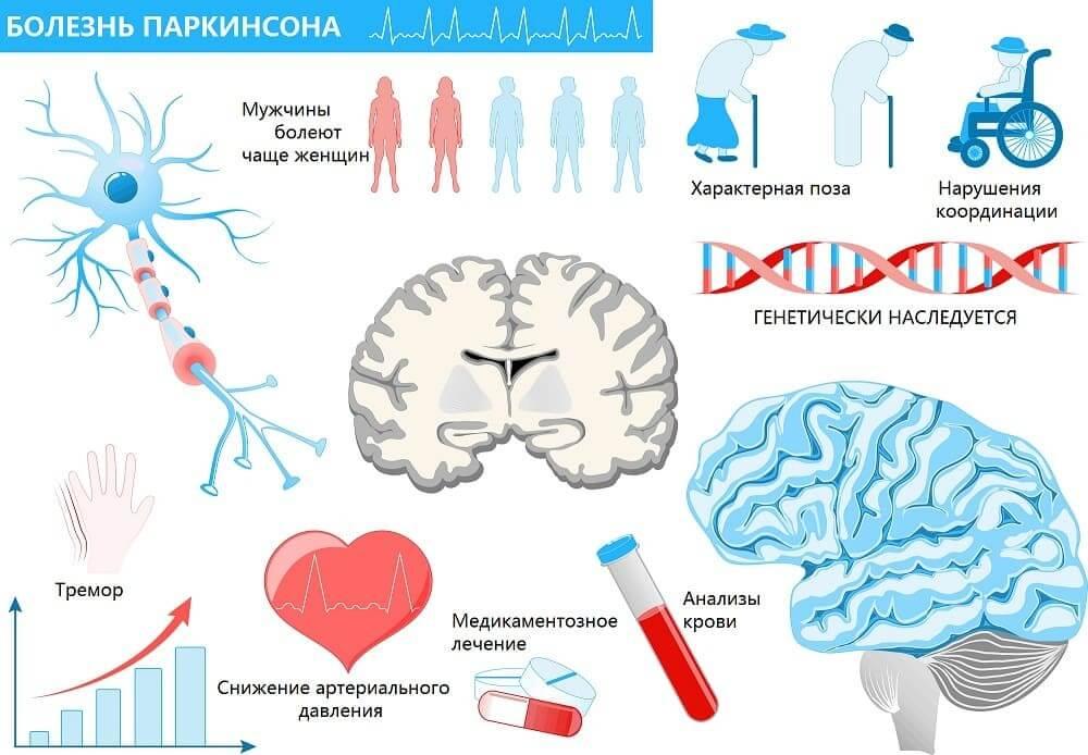 Инфографика болезни Паркинсона