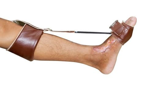 Ортез для поднятия носка ступни