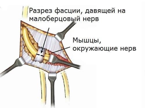 Принцип операции невролиза малоберцового нерва