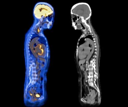 Тело человека на МРТ и фМРТ