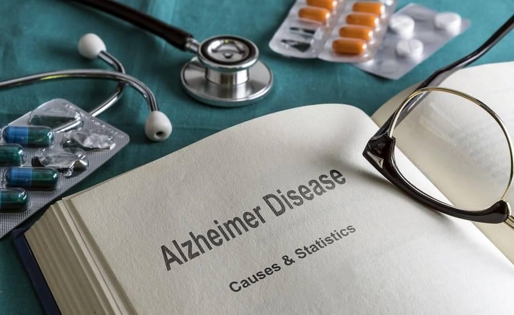 Болезнь Альцгеймера в справочнике