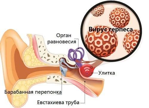 Герпес причина воспаления внутреннего уха