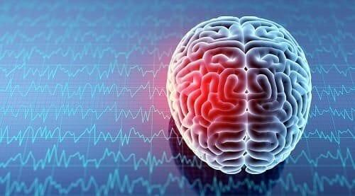 Исследование мозга ЭЭГ и МРТ