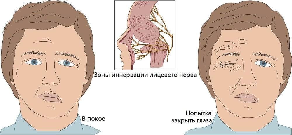 Паралич мышц лица при неврите лицевого нерва