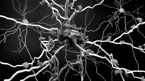 Нейрон, облепленный патологическими бляшками