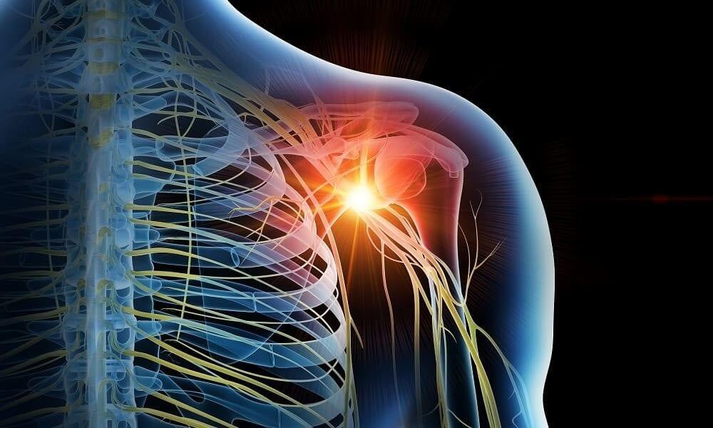 Концепт боли в области плеча