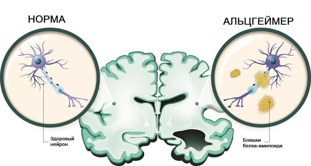 Сравнение здоровых и больных альцгеймером нейронов