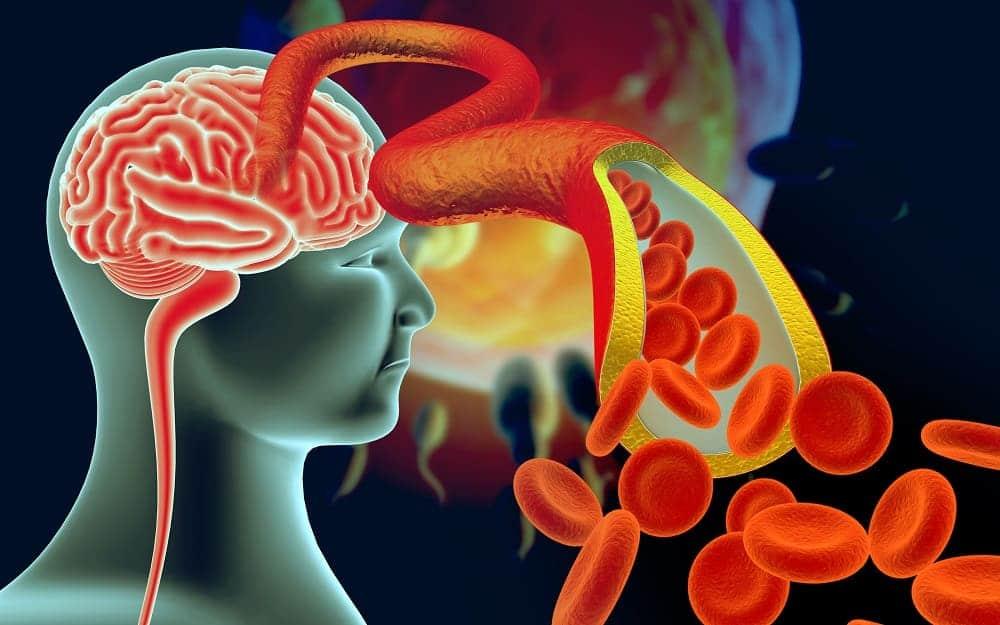 Дисциркуляторная энцефалопатия – цереброваскулярная патология