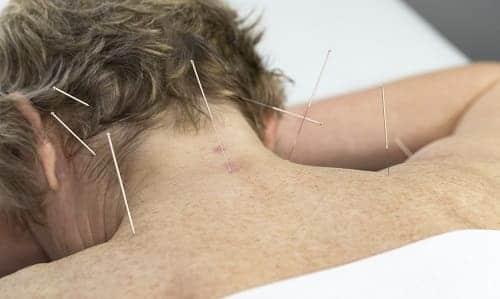 Иглоукалывание лечение энцефалопатии