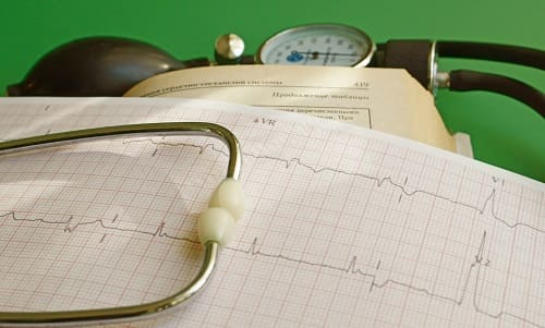 ЭКГ в диагностике боли в сердце при ВСД