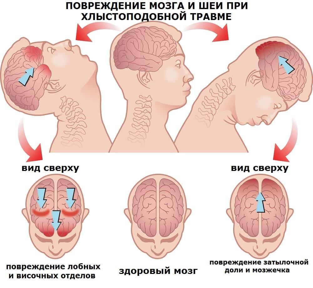 Механизм травмы мозга