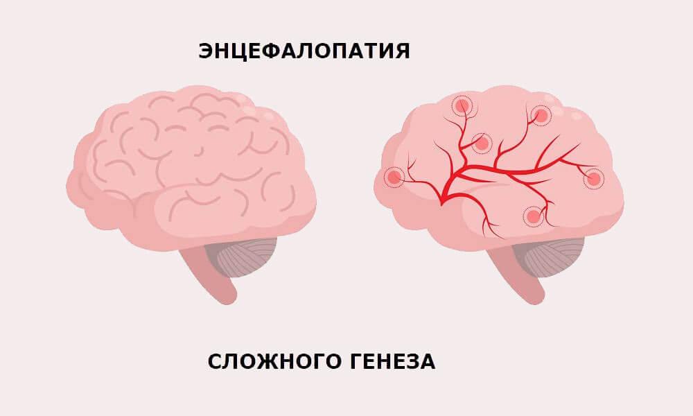 Мозг здоровый и с очагами энцефалопатии