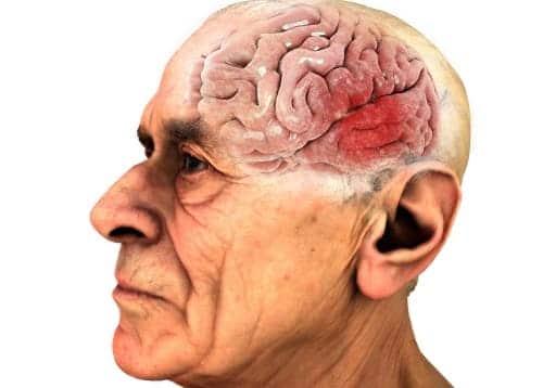 Очаг дисциркуляторной энцефалопатии у пожилого