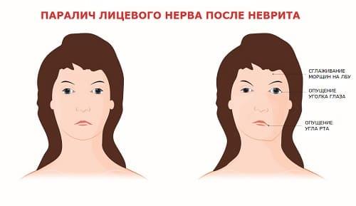 Паралич лицевого нерва нужно лечить массажем