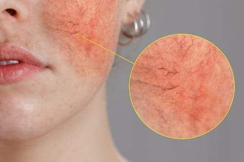 Воспаление на лице противопоказание к массажу