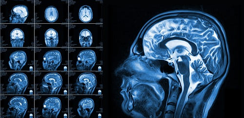 Мозг больного энцефалопатией на МРТ