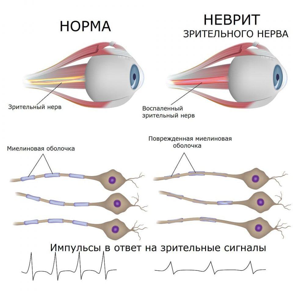 Неврит зрительного нерва при рассеянном склерозе