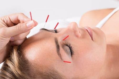 Иглоукалывание метод лечения головной боли