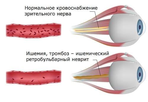 Ишемический ретробульбарный неврит