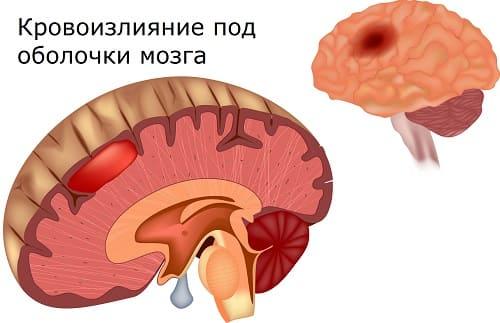 Кровоизлияние после ЧМТ причина головной боли с тошнотой