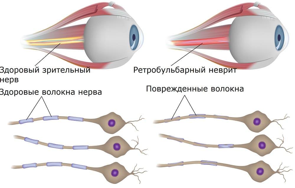 Поражение зрительного нерва при ретробульбарном неврите