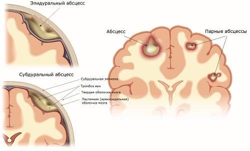 Абсцессы мозга – причины боли в висках и тошноты