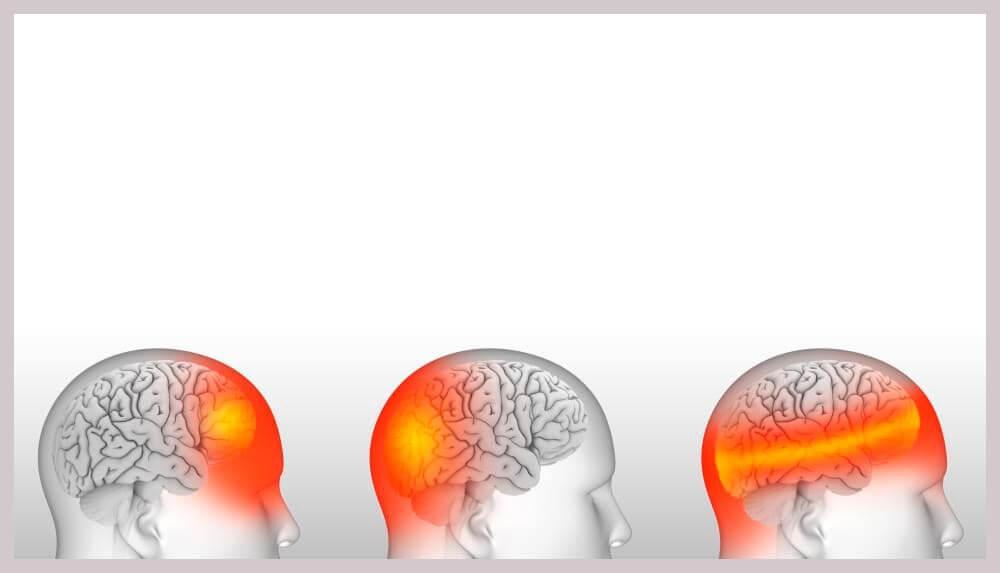 Виды и локализация головной боли