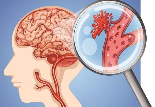 Геморрагический инсульт кровоизлияние в мозг