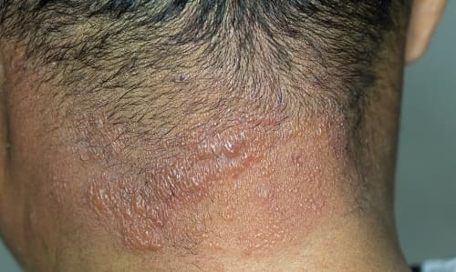 Инфекция кожи затылка – причина боли