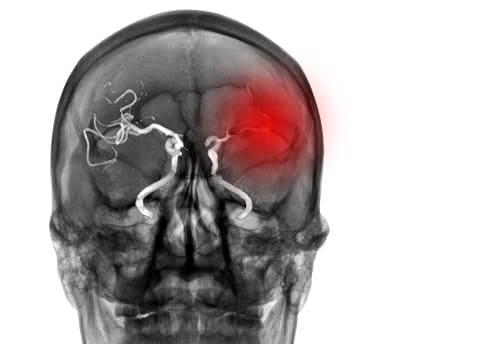 Ишемический инсульт от тромбоза сосудов мозга