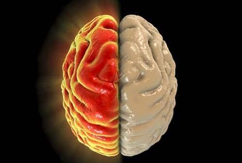 Мигрень боль в одной половине головы