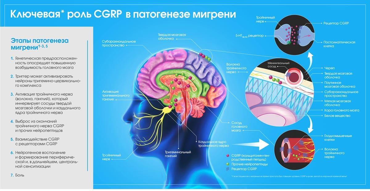 Научный подход для лечения мигрени