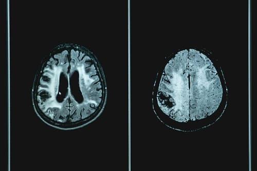 Очаги поражения мозга при энцефалопатии 3 степени