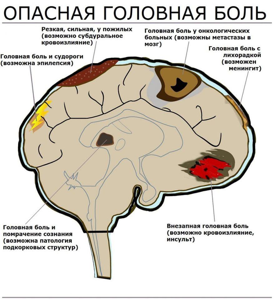 Опасные типы головной боли