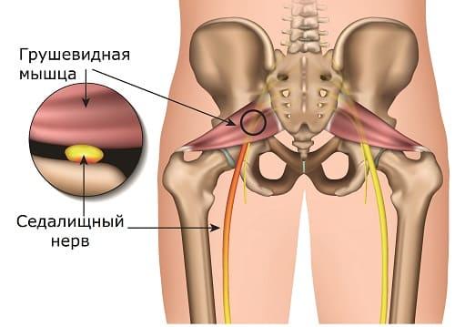 Синдром грушевидной мышцы – боль в седалищном нерве
