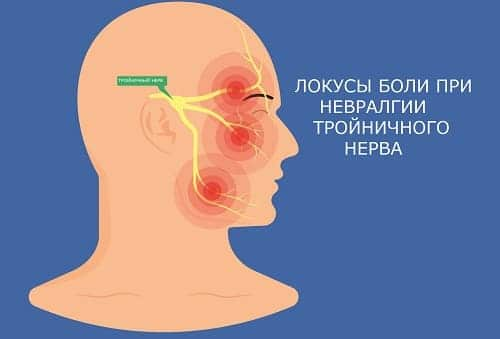 Тригеминальная невралгия приводит к боли в виске